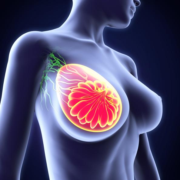 Tumore al seno ed inibitore aromatasi, quando farlo