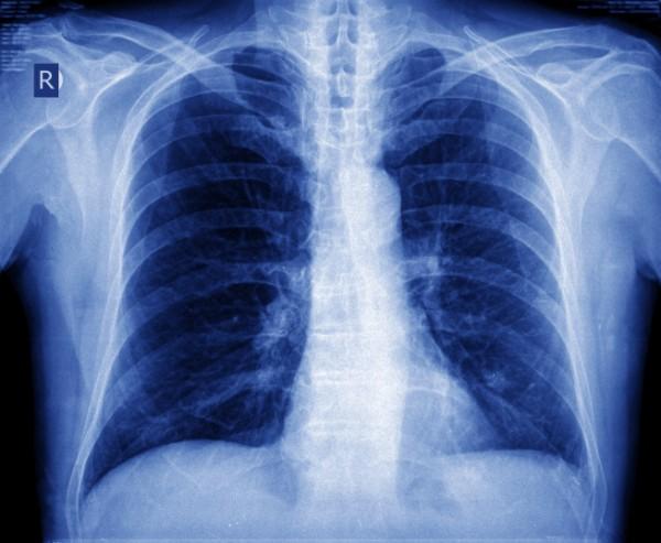 Nodulo polmonare, un tumore?