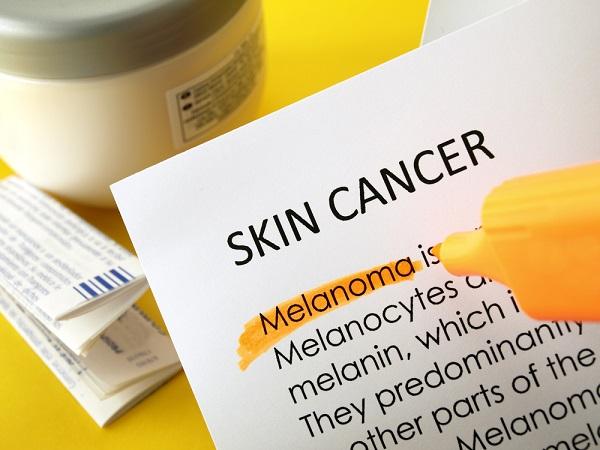 Melanoma  superficial spreanding microinvasivo: oncologo risponde
