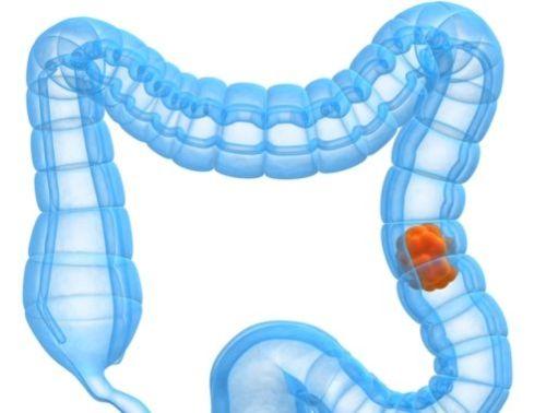 Colonscopia per tumore al colon, quando farla?