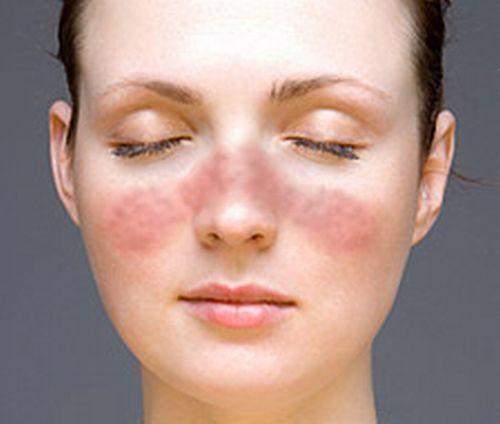 Pelle irritata, connettivite e dolori articolari, malattia autoimmune?