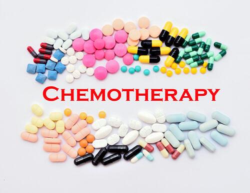Chemioterapia preventiva e tumore al colon