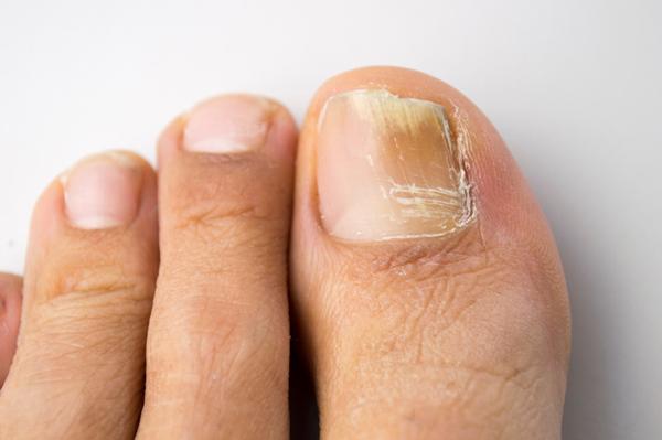 Micosi unghie, consigli da seguire
