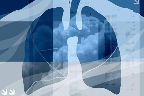 Microcitoma polmonare con metastasi celebrali, che fare?