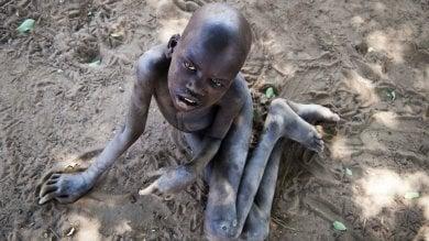 Africa: la sindrome del dondolamento, che nel silenzio porta alla morte migliaia di bambini