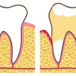 Parodontite: le cause, i sintomi e le terapie più efficaci