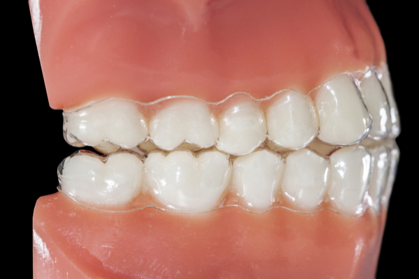 Bruxismo: cosa può succedere a chi digrigna i denti di notte?