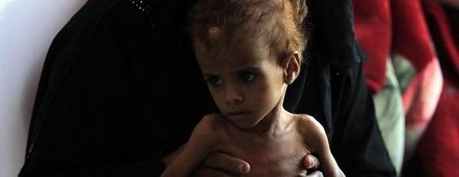 """Yemen, un Paese """"sotto tortura"""" da 5 anni ormai prossimo a diventare il più povero del mondo"""